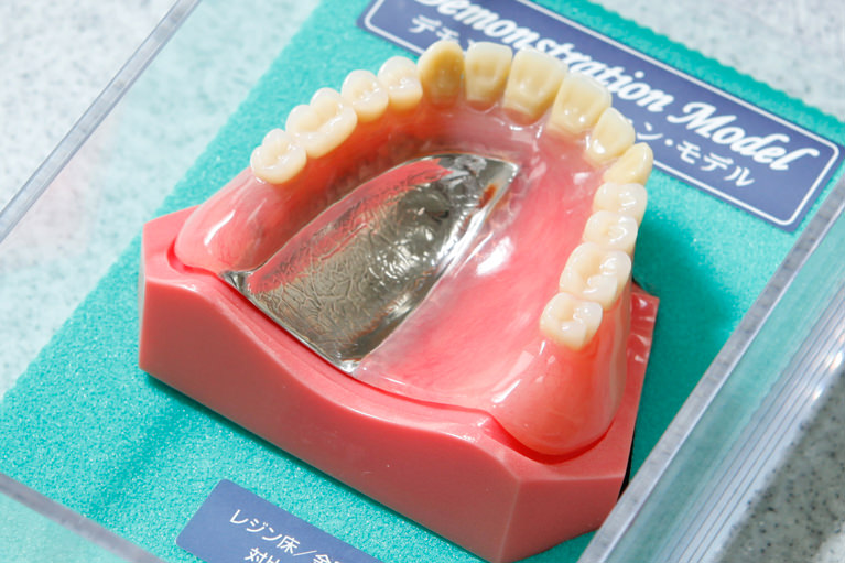 「保険の入れ歯」と「自費の入れ歯」の違い